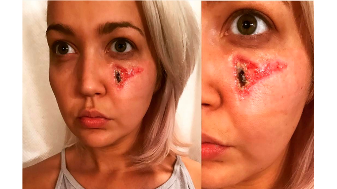 'The Voice' Singer GROSSES Out Fans With Horrifying Pic Of Spider Bite