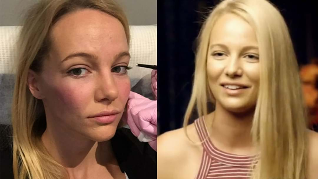 The Bachelor's Leah Has Had Cosmetic Injections & She Wants You All To See