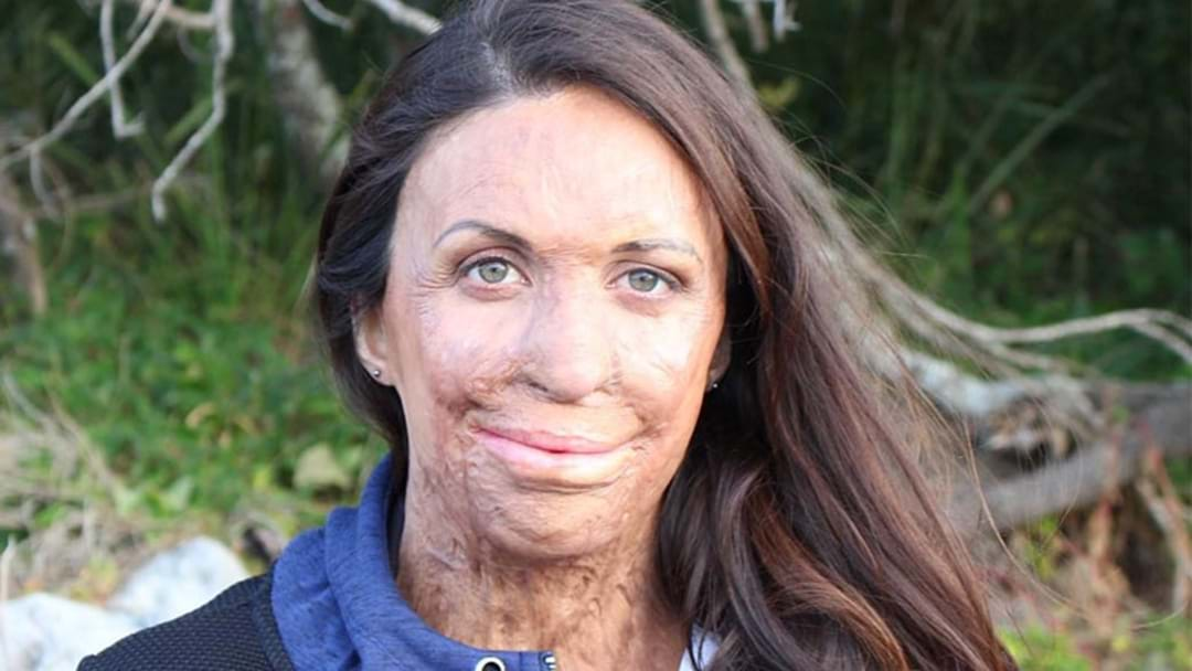 Turia Pitt Has Welcomed Her Beautiful Baby Boy!