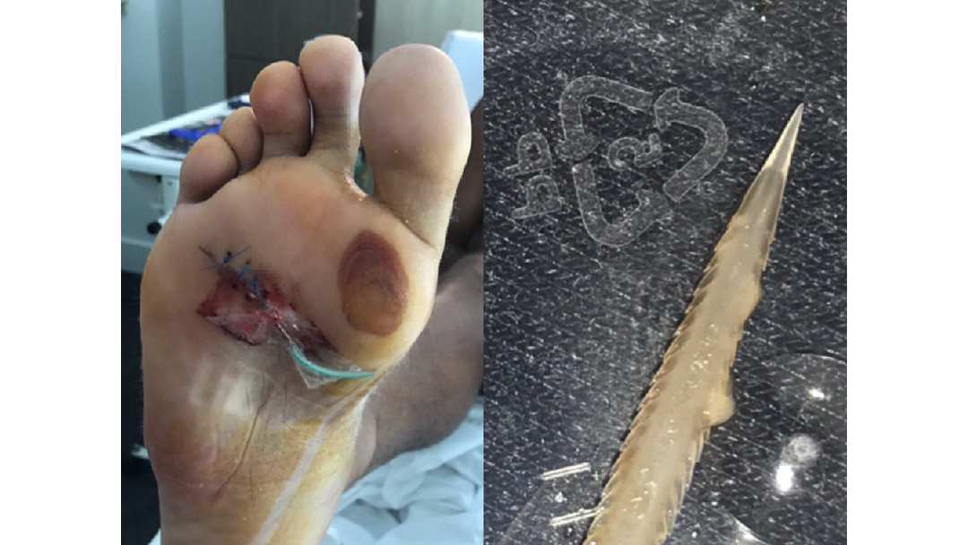 OUCH! Lion stung by stingray at Nobby's Beach