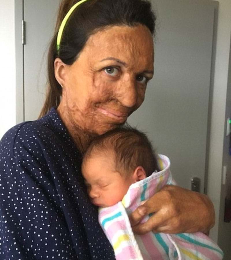 Turia Pitt and her newborn Hakavai Hoskin