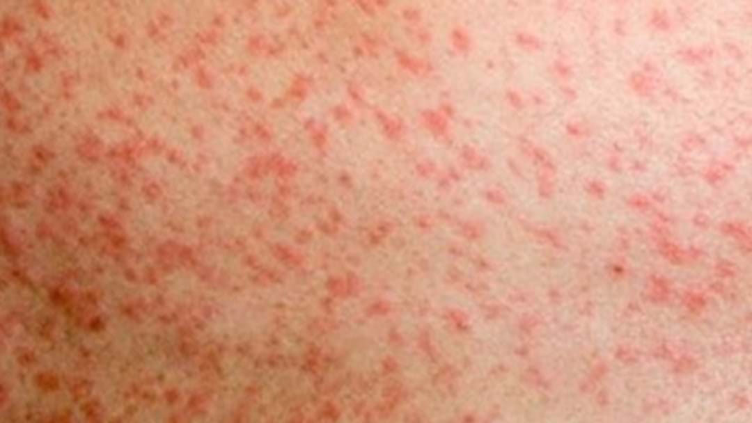 Fifth Case Of Measles Confirmed In Brisbane
