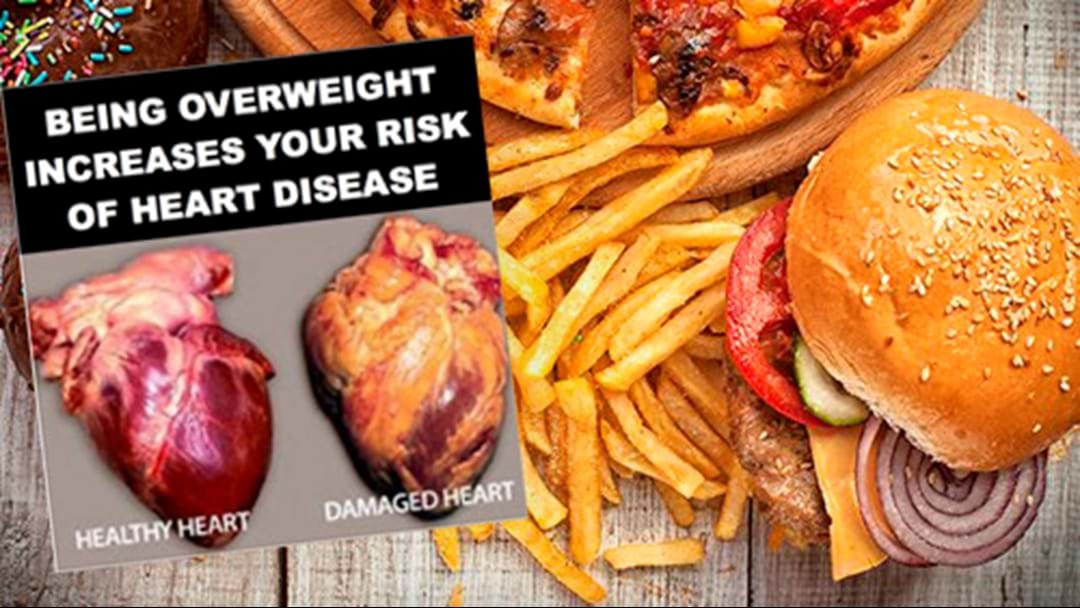 Experts Call For Graphic Warnings On Junk Food Similar To Cigarettes