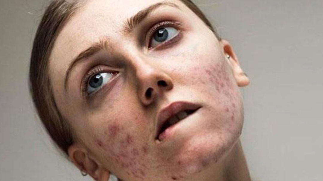 #FreeThePimple Is Taking Over Instagram, So Love The Skin You're In