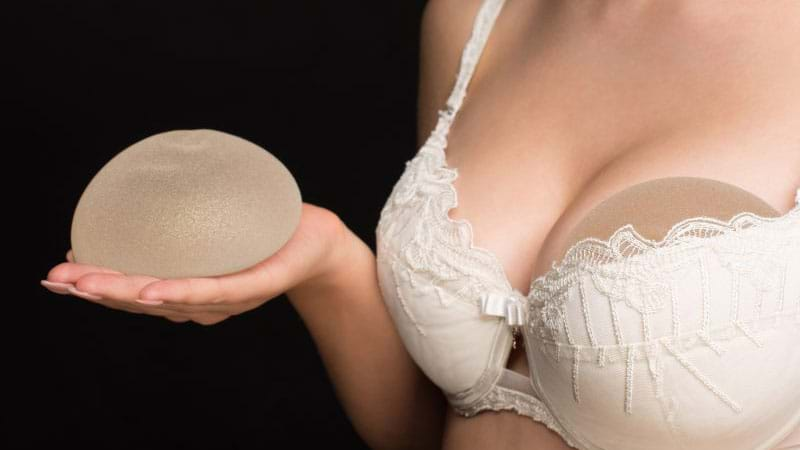 Article heading image for In A Divorce Settlement Who Owns Breast Implants?