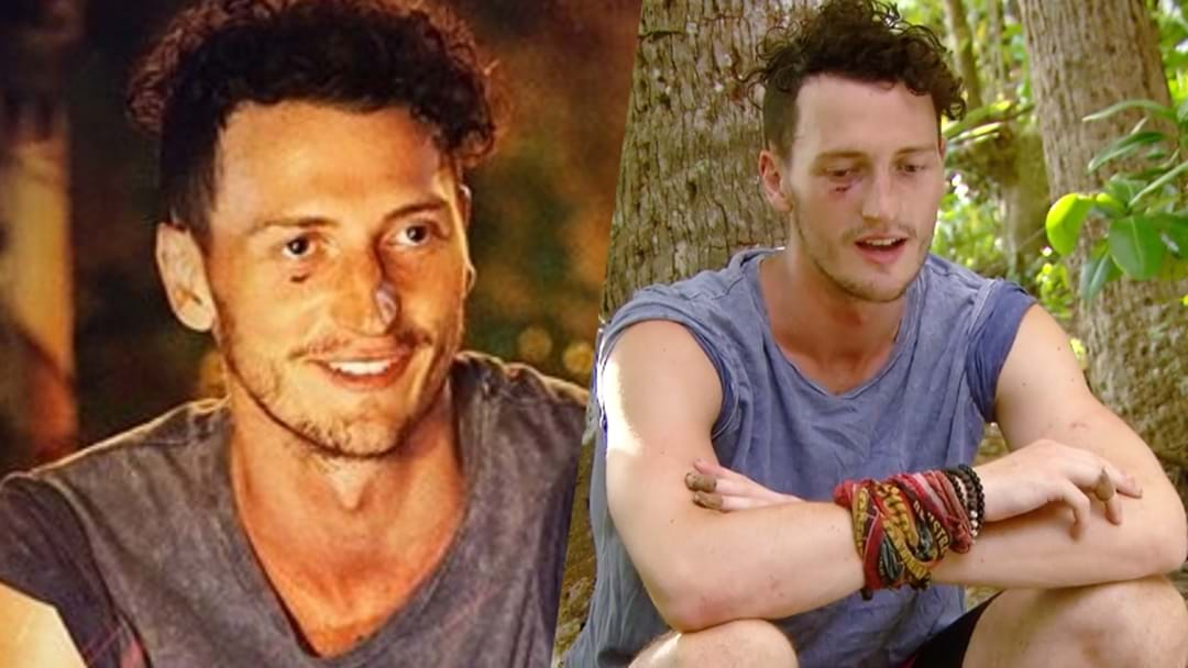 This Is How Survivor's Benji Got That Mysterious Cut On His Face