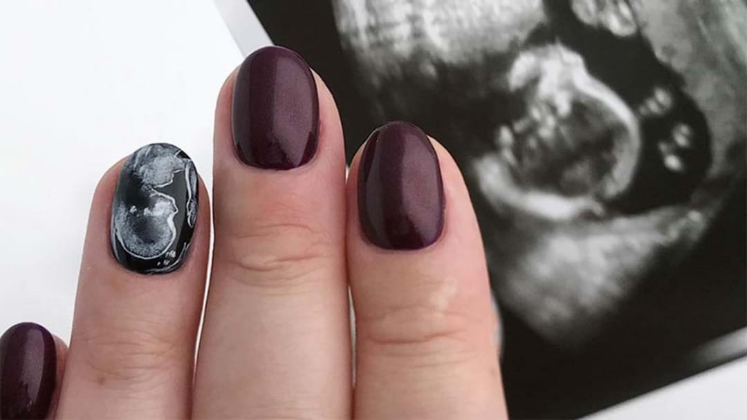 Ultrasound Nails Are The Best Way To Break Baby News To Your Friends