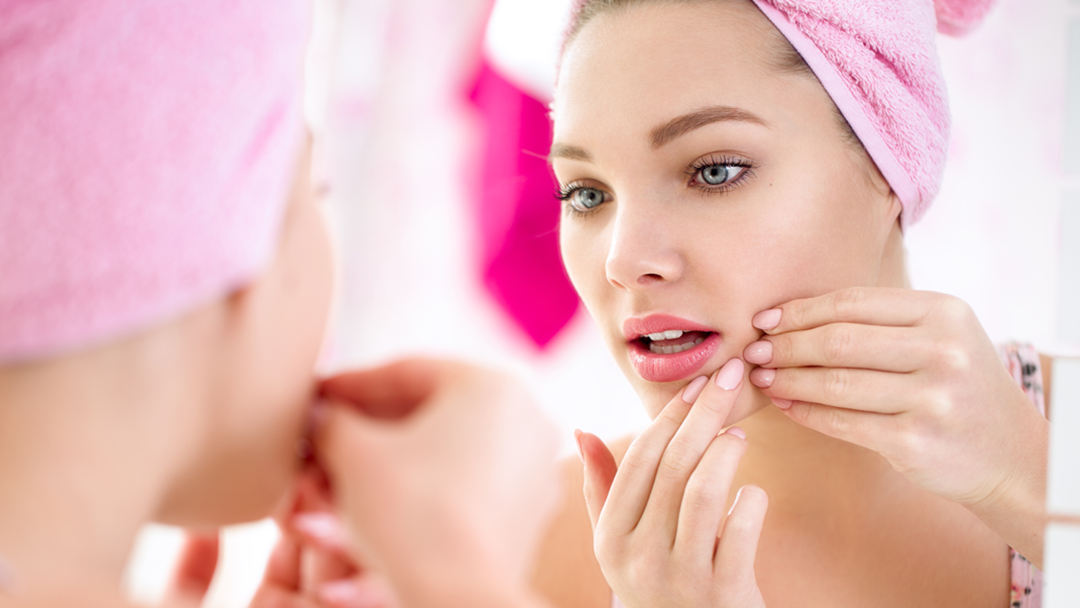 Popping A Pimple On THIS Part Of Your Face Could Be Fatal